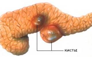 Киста поджелудочной железы симптомы проявление