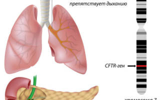 Фиброматоз поджелудочной железы