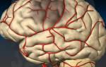 Как бороться с Болезниом сосудов головного мозга