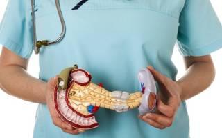 Лечение панкреонекроза в реанимации