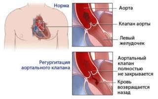 Болезни аорты и аортального клапана