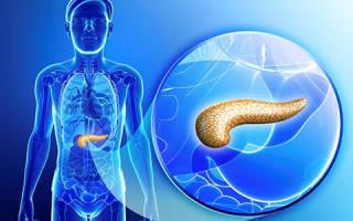 Кистозный фиброз поджелудочной железы
