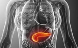 Увеличение головки поджелудочной железы причины