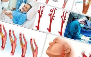 Реабилитация после операции на сонной артерии