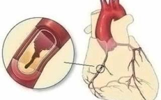 Атеросклеротический кардиосклероз лечение