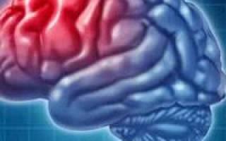 Какое Болезни бывает при инсульте