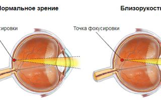 Болезни и глаза
