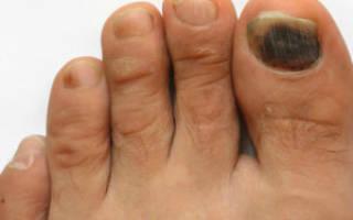Почернел большой палец на ноге