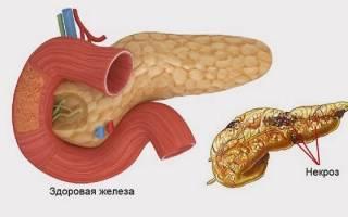 Болезни некроз поджелудочной железы