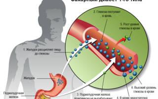 Симптомы Болезниа 1 типа у мужчин
