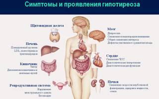 Статины при гипотиреозе