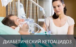 Диабетический кетоацидоз лечение