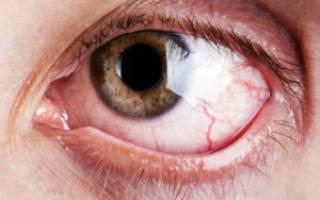 Лечение глаз при сахарном Болезние