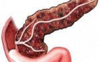 Диффузные изменения поджелудочной железы по типу фиброза