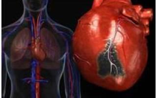 Кардиосклероз постинфарктный причина смерти