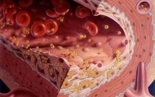Растворение холестериновых бляшек в сосудах