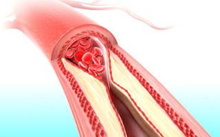 Подготовка к сдаче анализа крови на холестерин