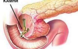 Камни в поджелудочной железе симптомы