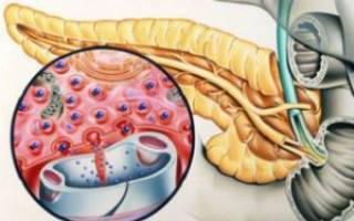 Что означает повышенный инсулин в крови