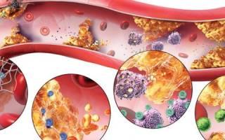 Атеросклеротическое поражение сосудов
