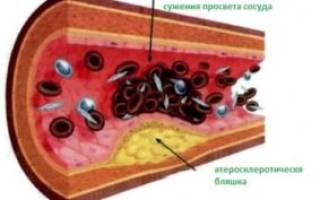 Народные средства от бляшек в сосудах шеи
