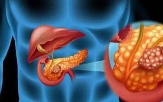 Дренирование кисты поджелудочной железы