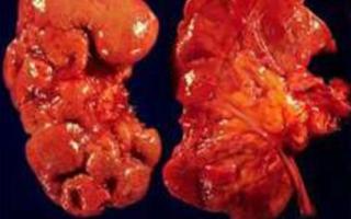 Хронический Болезни клинические рекомендации