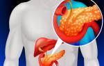 Отказ поджелудочной железы симптомы