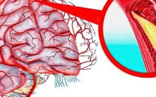 Склеротические бляшки в сосудах головного мозга