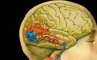Диагностика Болезниа сосудов головного мозга