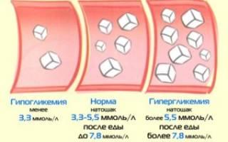 Признаки гипогликемии при сахарном Болезние