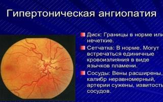 Гипертоническая ангиопатия сетчатки обоих глаз лечение