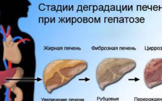Жировая инфильтрация печени и поджелудочной железы лечение