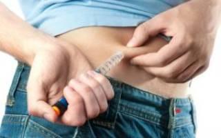 Шмуэль левит новая концепция лечения сахарного Болезниа