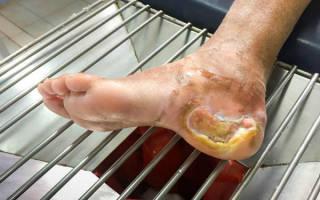 Диабетические язвы на ногах лечение