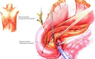 Операция фрея на поджелудочной железе