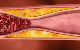 Лекарства от холестериновых бляшек