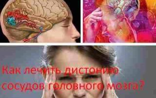 Чем лечить сосуды головного мозга народными средствами