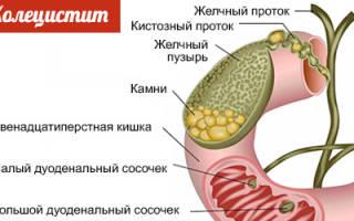 Перепелиные яйца при холецистите