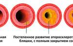 Как избавиться от атеросклеротических бляшек в сосудах