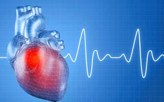 Что может стать причиной гипертонической болезни человека