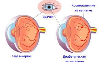 Лечение диабетической ретинопатии медикаментозное