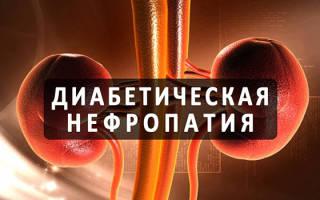 Диабетическая нефропатия классификация по стадиям