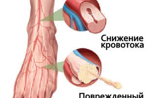 Массаж при полинейропатии