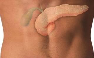 Деформация поджелудочной железы что это такое