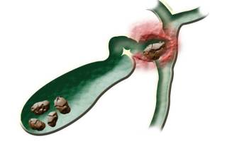 Холестериновые камни в желчном пузыре лечение