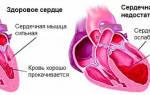 Признаки повышенного давления у человека симптомы