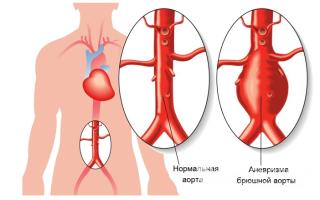 Болезни аорты что это как лечить