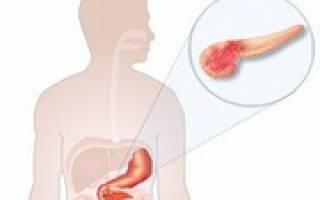 Объемное образование головки поджелудочной железы