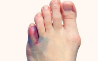 Посинели пальцы на ногах причины